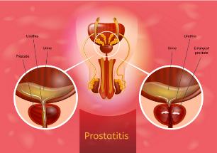 A prostatitis kezelése URO- ban az áttekintésekről)